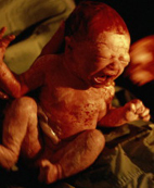 Embriyo nedir, geli�imi ile ilgili bilgi verir misiniz?