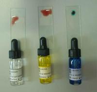 Kan Gruplarının Tayini Nasıl Yapılır?