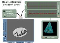 Basitle�tirilmi� ultrason arac�