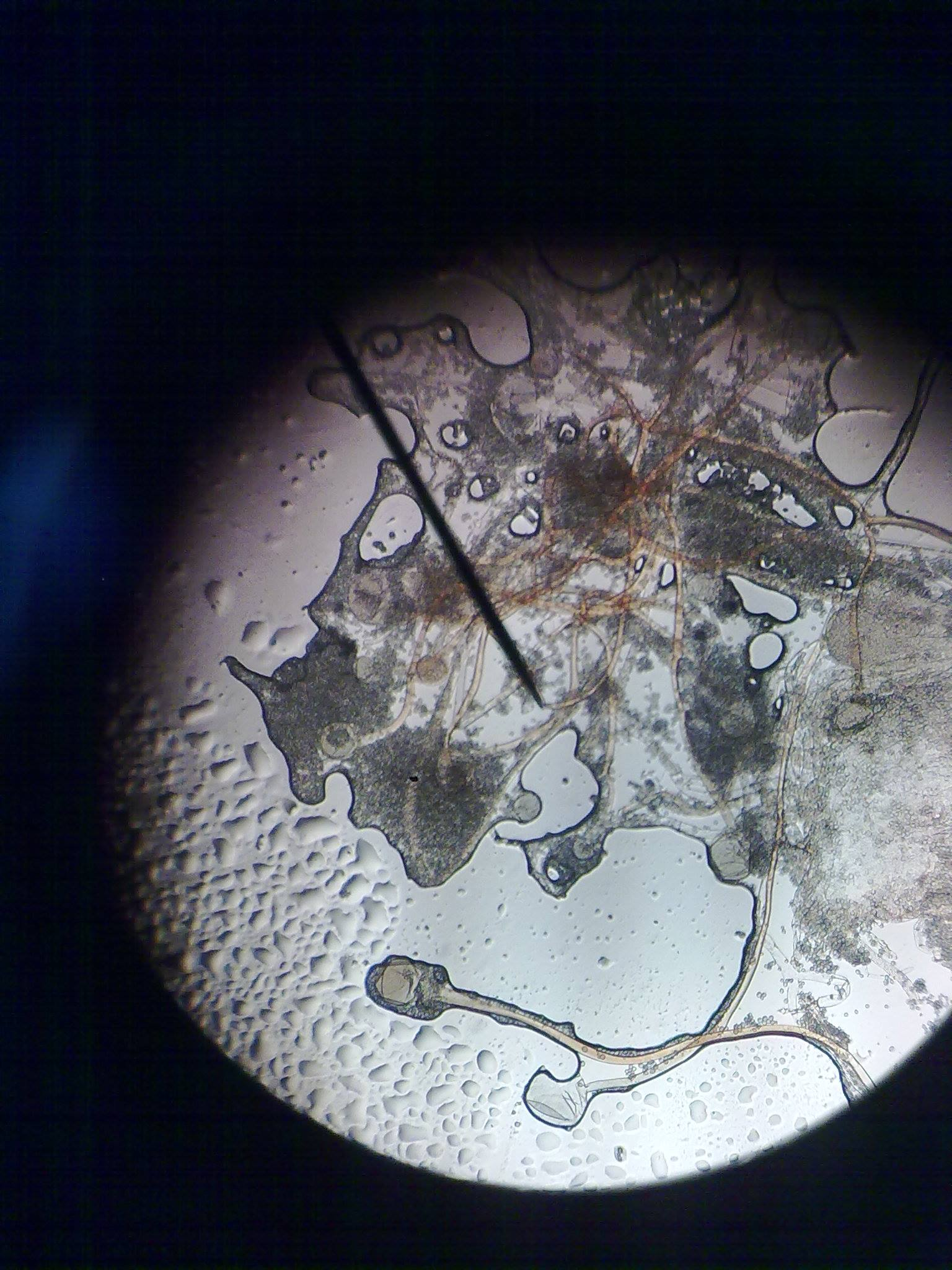 Ekmek küfünün mikroskoptaki gösterimi