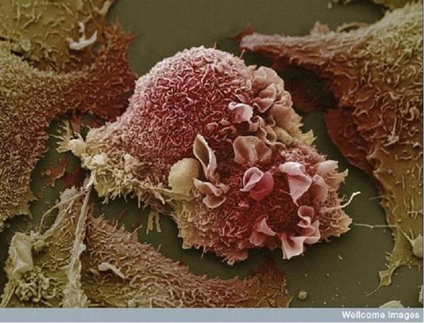 Akciğer Kanser Hücresi