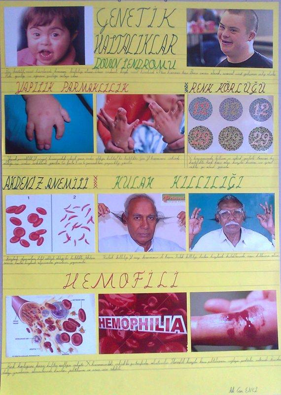 Kalıtsal Hastalıklar