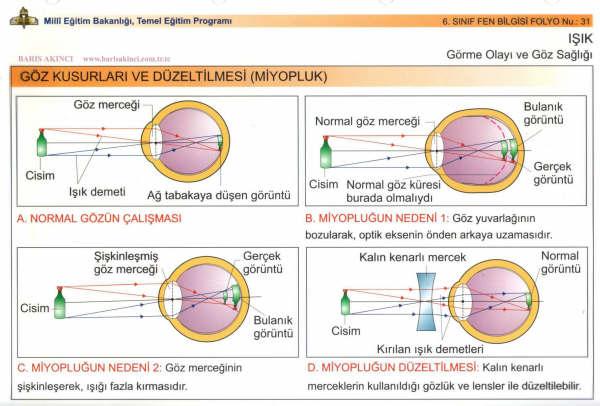 Göz Kusurlarının Düzeltilmesi Miyopluk