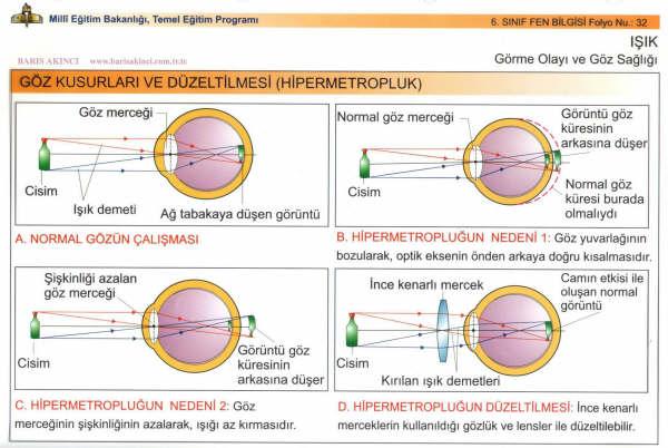 Göz Kusurlarının Düzeltilmesi Hipermetropluk
