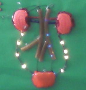 Işıklı Böbrek Modeli