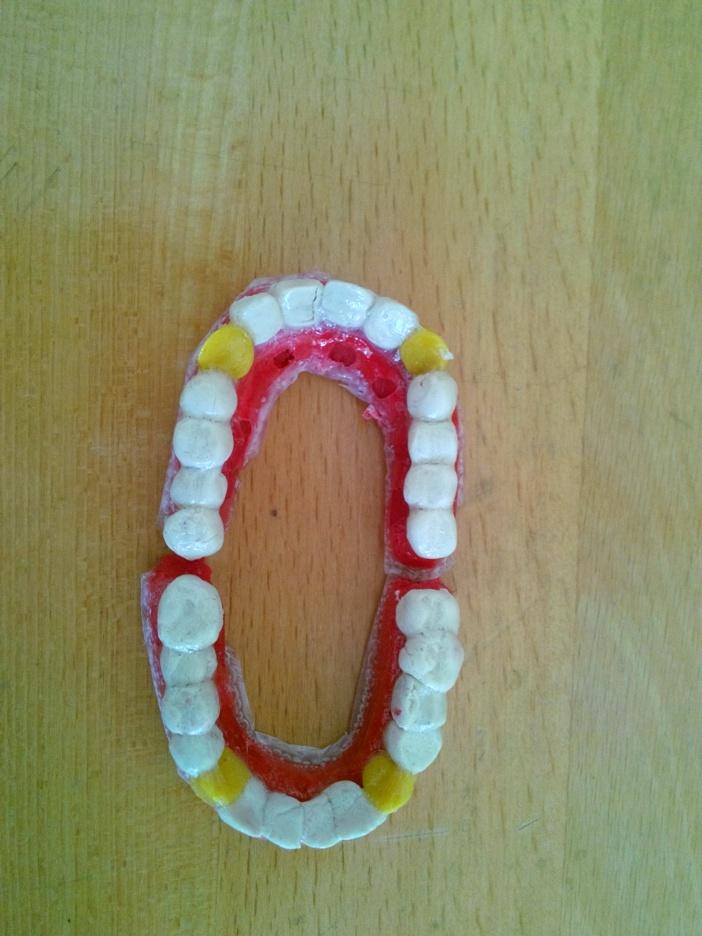 diş modeli
