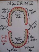 Diş Modeli yapımı